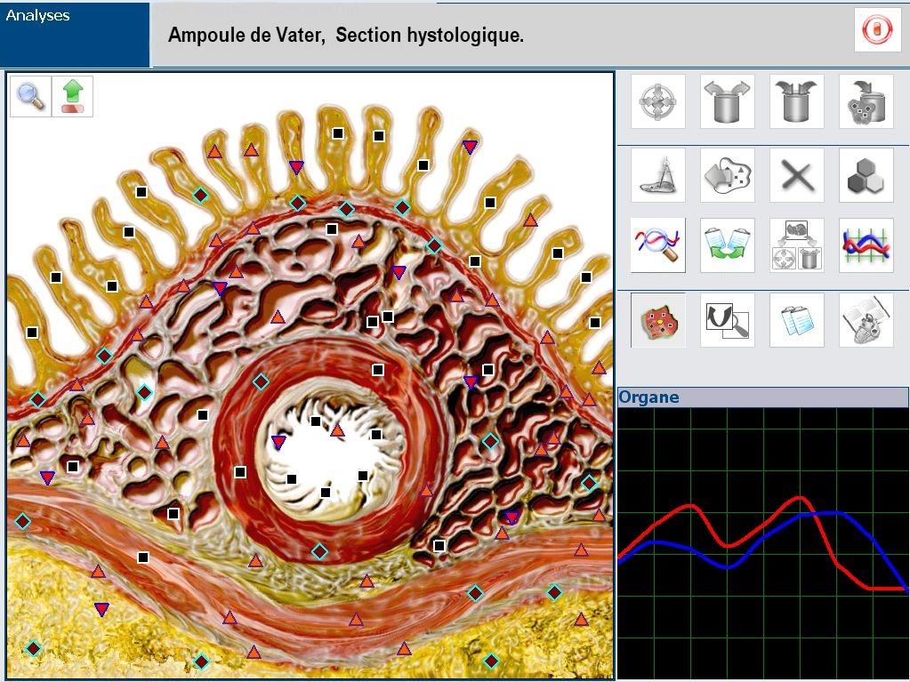 image biorésonance et santé de l'appareil aumscan