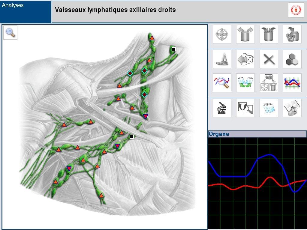 image 3d de l'aumscan 3 appareil de biorésonance